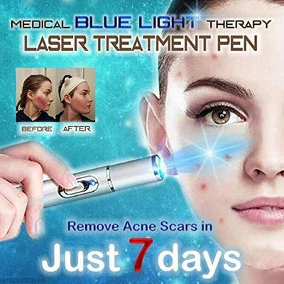 Blue Light Therapy Varicose Veins Treatment Pen Soft Acne Scar Blemish Wrinkle Removal